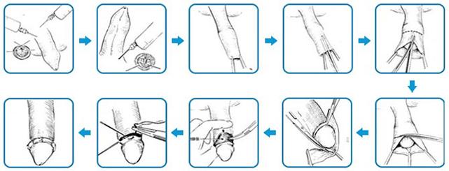 Quá trình cắt bao quy đầu ở Phòng khám